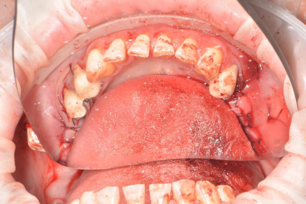 Виниры ставят на мертвые зубы