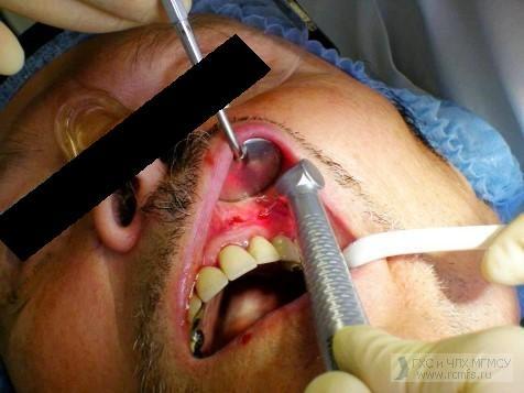 боль после удаления кисты зуба: