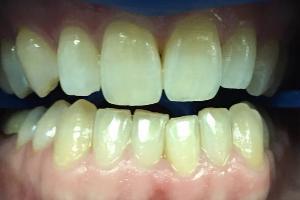 Зубы отбеливают по одному или сразу все