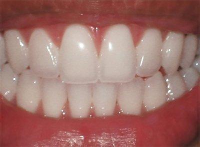 Как отбелит зубы на дому