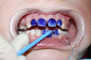 Серебрить зубы детям фото до и после