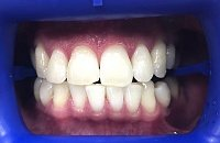 отбеливание зубов зум 3 отзывы